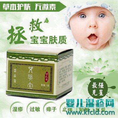 艾婴宝婴儿湿疹护肤霜