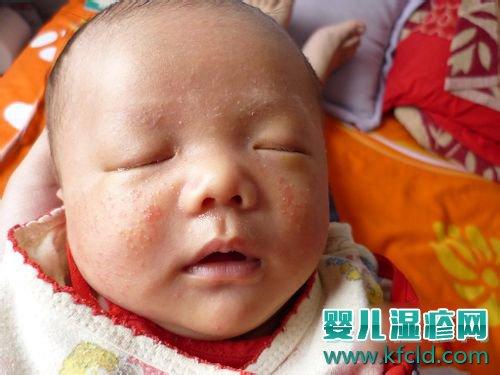 儿童湿疹症状 儿童湿疹症状图片