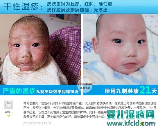 九制芙康软膏对宝宝湿疹怎么样 九制芙康湿疹膏有激素吗