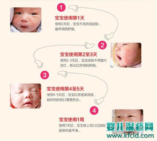 婴宝诺必行护肤霜